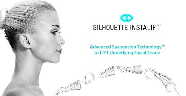 Silhouette InstaLift Cleveland | Non-Surgical Facelift Willoughby