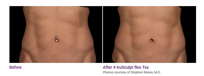 truSculpt® flex Before and After Photos