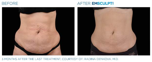 EMSCULPT NEO® Before and After Cleveland